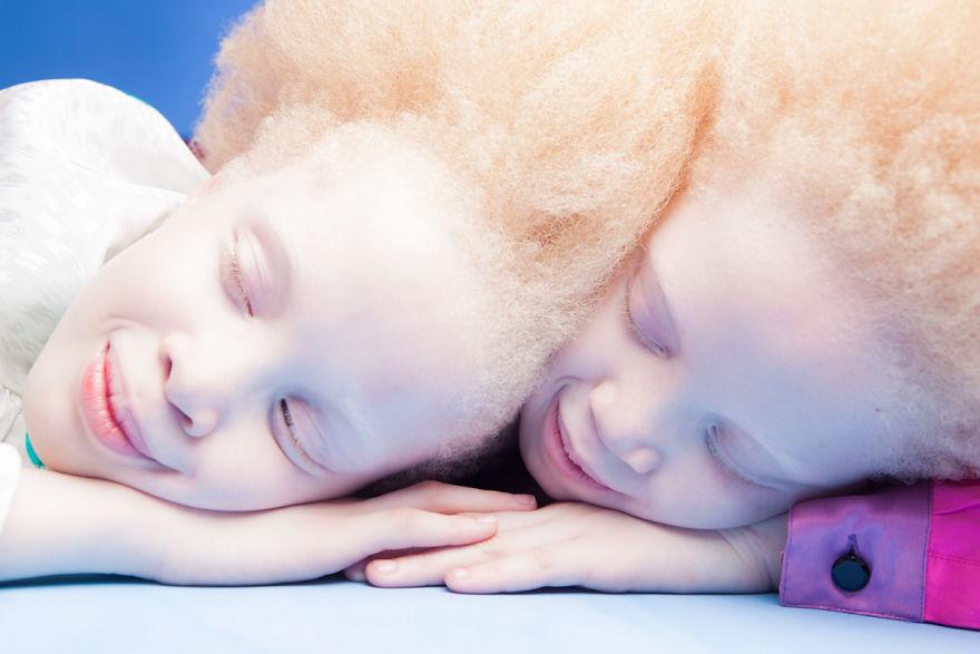mustget-albino (2)